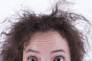 Unhealthy/Damaged Hair