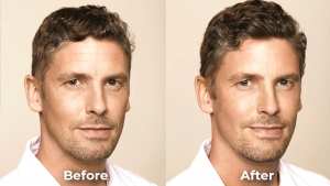Benefits of Facial Before and After