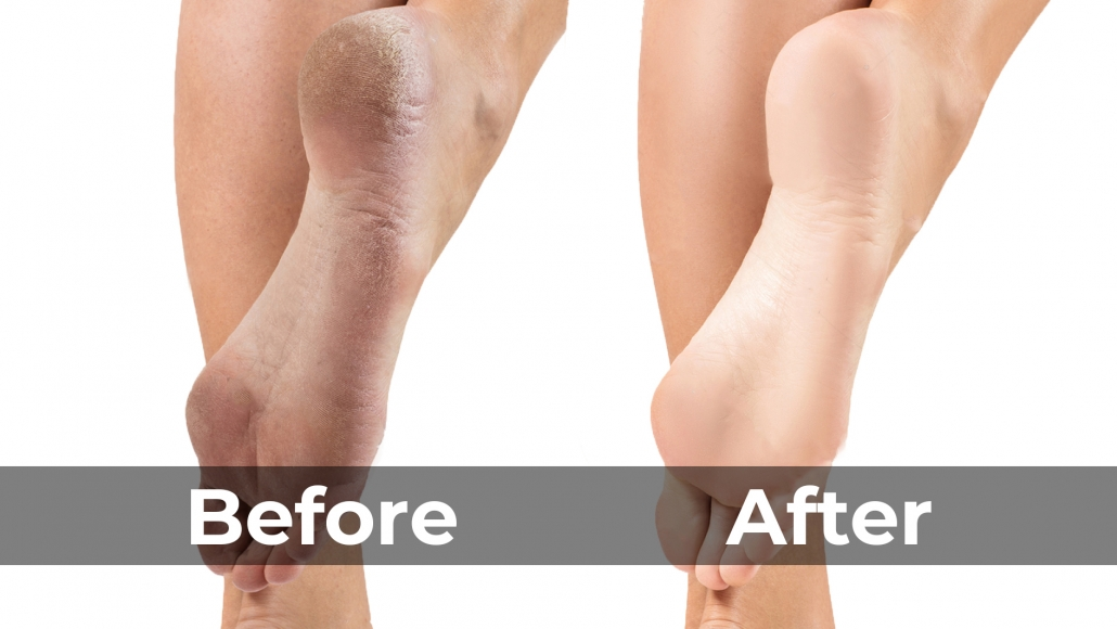 Benefits of Foot Spa, Before and After Result SKILLS Dubai Barbershop