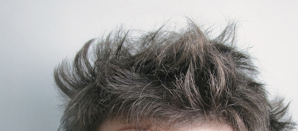 Dry Hair when using commercial shampoo